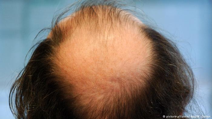 هورمون جنسی در مردان باعث ریزش مو نمیشود