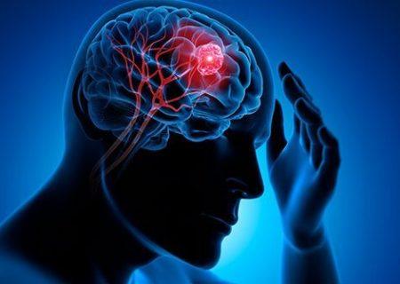 تشخیص تومور مغزی از طریق آزمایش ادرار یا پلاسمای خون