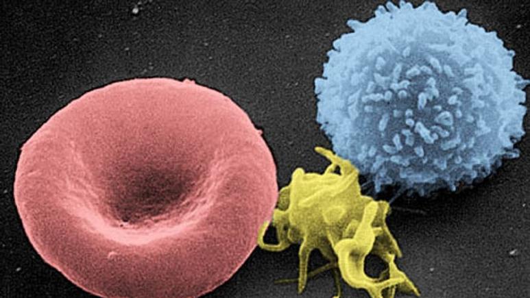 نتایج اولیه نوعی درمان برای تومور مغزی دانشمندان را امیدوار کرد