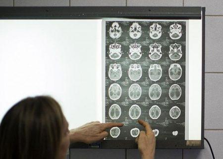 یافته جدید دانشمندان: ابتلا به کرونا منجر به خونریزیهای کوچک مغزی میشود