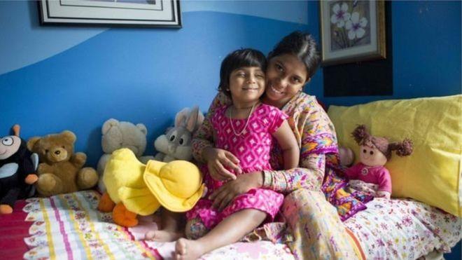 پای سوم دختر سه ساله با موفقیت جدا شد